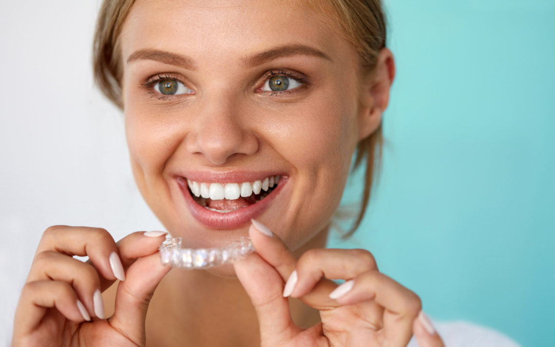 Things You Should Know Before Getting Invisalign